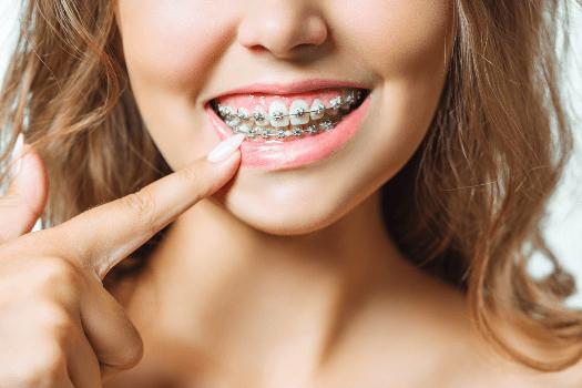 ortodoncia en Ribeira
